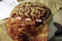 Brain surgery for the series 'House M.D'