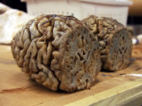 Dead brain for on camera slicing for the series 'Body of Proof'