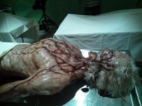 Diseased Body from 'Matador'