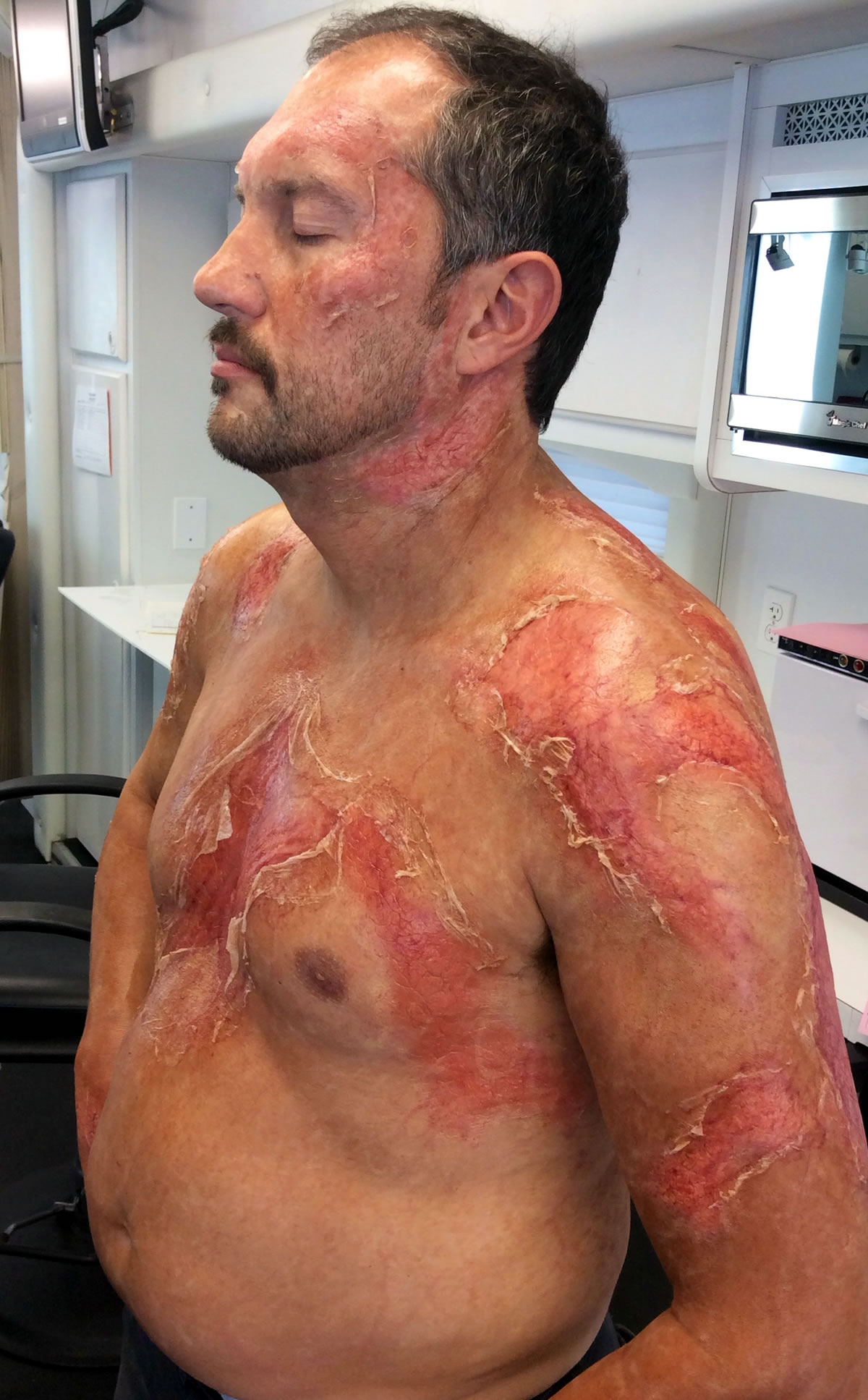 Extreme Psoriasis for the series 'Matador' on El Rey Network