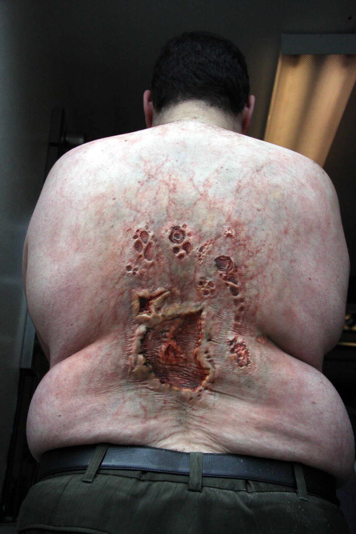 Extreme infected bedsores for the series '1000 Ways to Die'