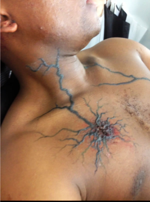 Singer wound on Alby character for the fim 'The Maze Runner'
