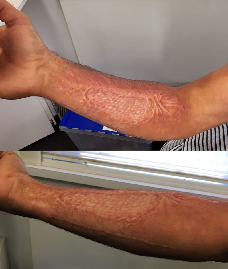 Skin graft appliances for the series 'NCIS-Los Angeles'