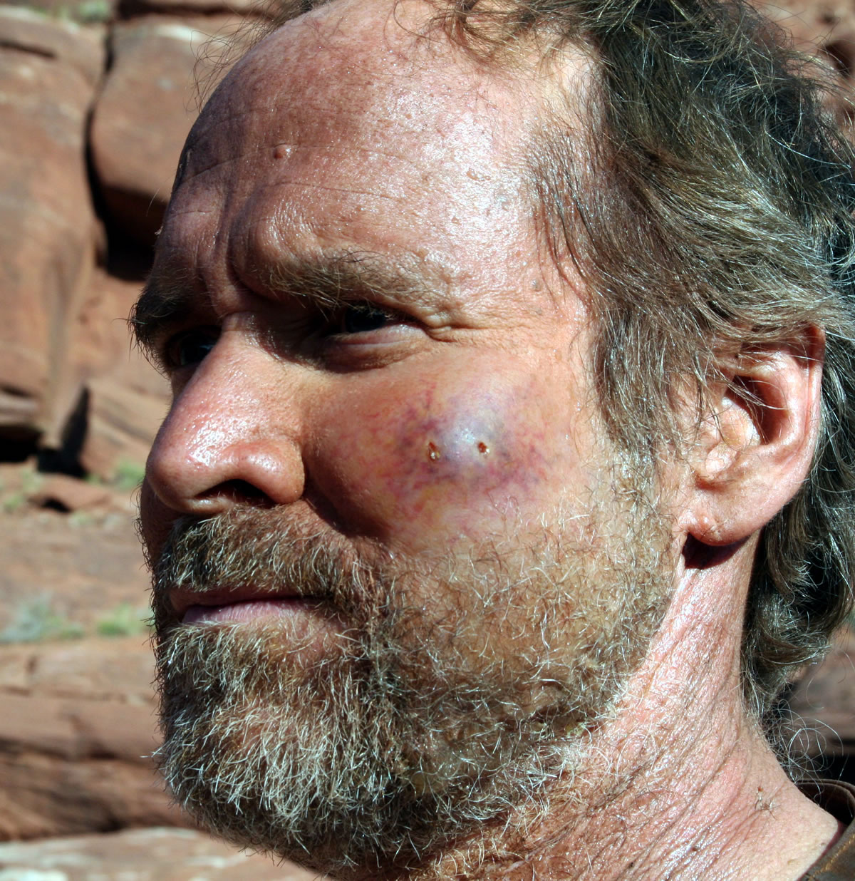 Swollen snake bite wound for the film 'The Canyon'