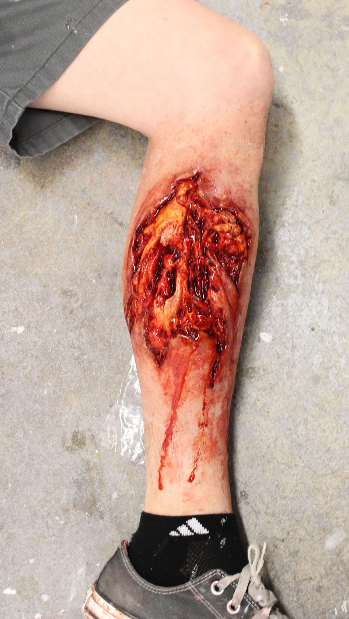 Deep Leg Laceration