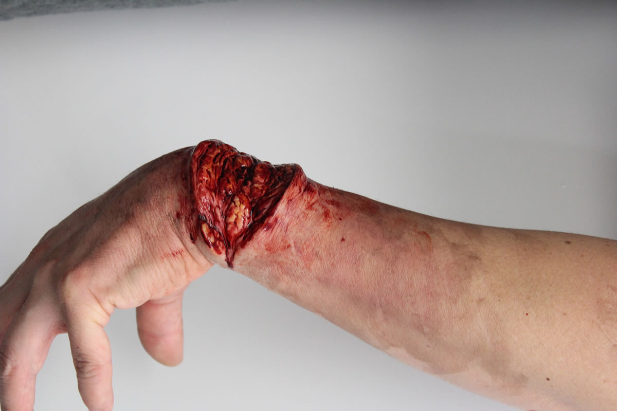 Wrist Laceration