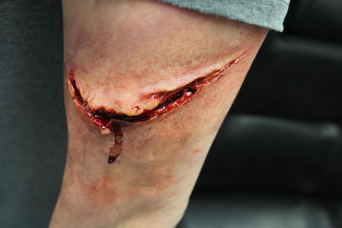 deep laceration
